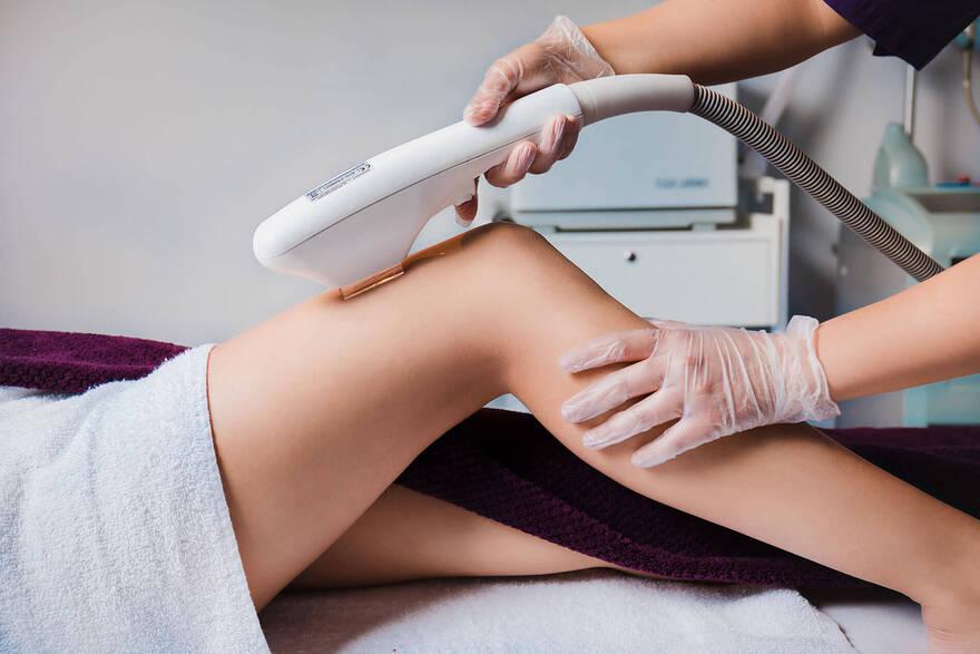 Описание процедуры лазерной эпиляции